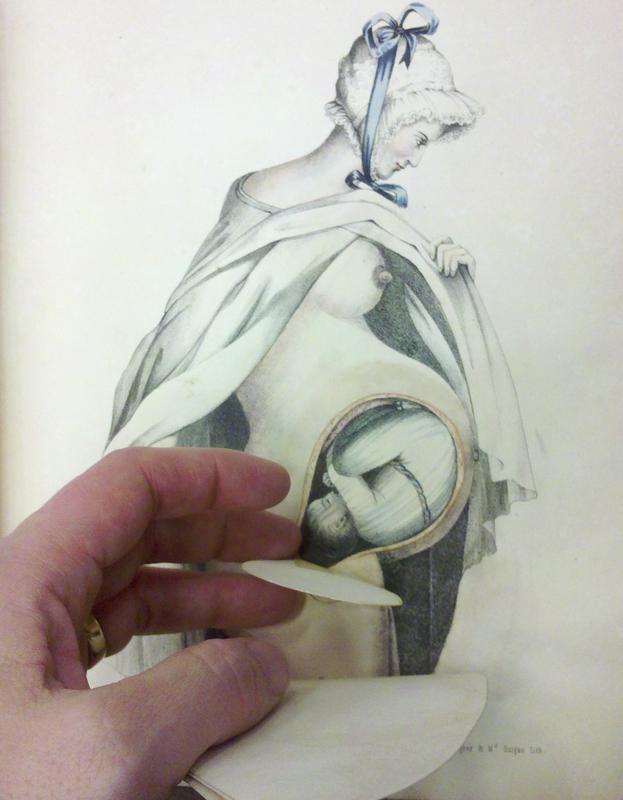 G. Spratt, Obstetric tables.. (pregnant woman with bonnet), 1847.